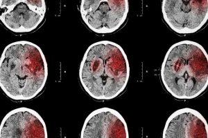 脳梗塞のリハビリをする上で、知っておきたい後遺症の種類と判定方法